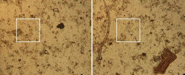 Obr. 1: Mikroskopické snímky prasečí kejdy, velikost rámečku je 0,05 × 0,05 mm