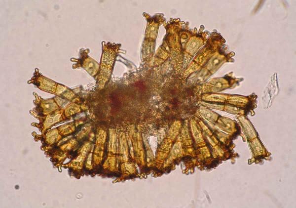 Puccinia coronata - teliospory